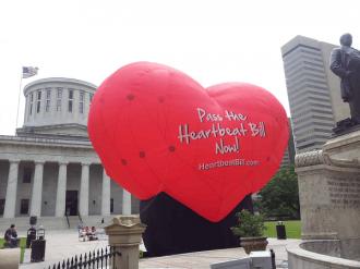 Το Ανώτατο Δικαστήριο των ΗΠΑ επιτρέπει να τεθεί σε ισχύ ο νόμος του Τέξας για τον εμβρυικό «καρδιακό παλμό»